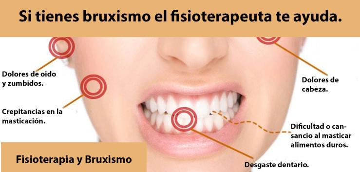 141-bruxismo-si_tienes_bruxismo_el_fisioterapeuta_te_ayuda